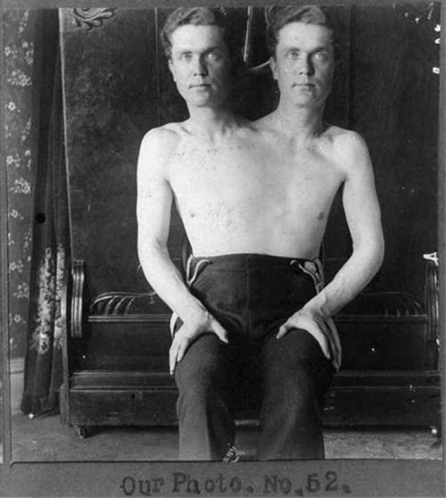 two-headed man